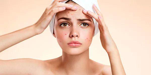 acne brufoli sebo